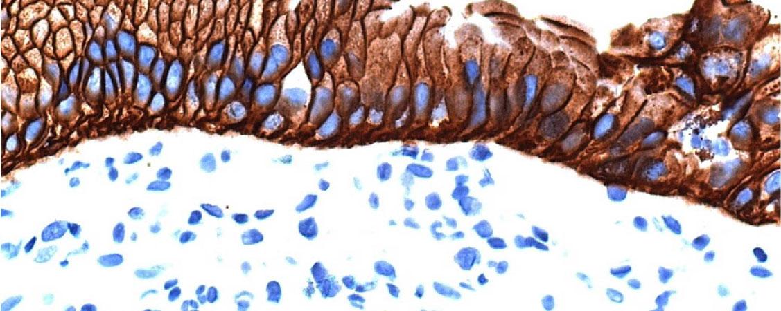 Header-Gemeinschaftspraxis-für-Pathologie-53113-Bonn-Zentrum-Nikorowitsch-Zhou-Kindermann